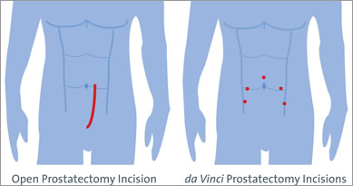prostate incision